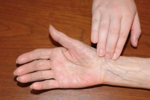 Healthcare provider placing fingers along the radial bone near the flexor aspect of wrist to correctly measure radial pulse